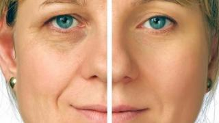 Anti-aging: The new way of life